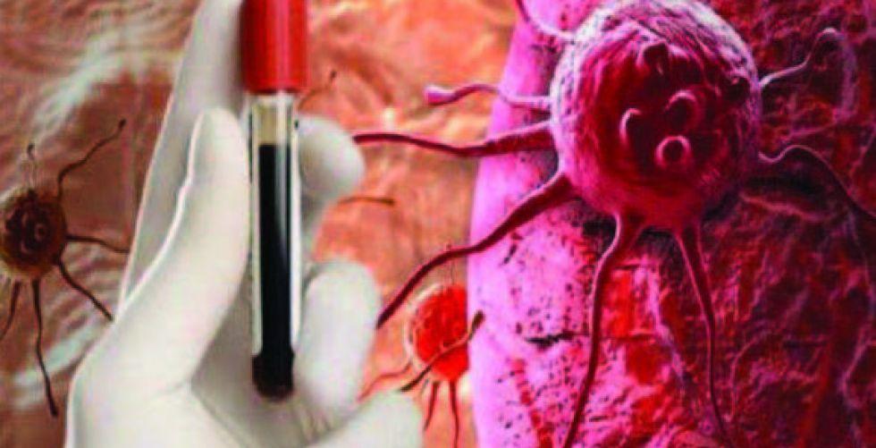 علاج ناجع لمرضى سرطان الدم المستعصي على الشفاء
