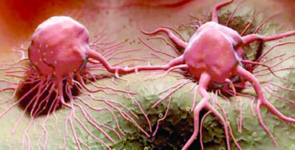 بريق أمل.. دراسة تضيء أسرار السرطان الوراثية