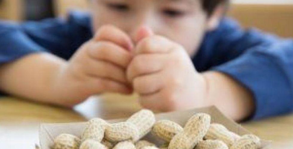 العلاج المناعي يقلل شدة حساسية الفول السوداني