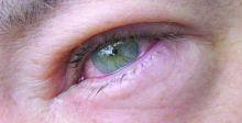 شعيرة العين.. إلتهابٌ يصيبُ الغددَ الدهنيَّة على طرفِ الجفنين