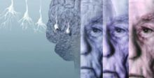 تشخيص نوع جديد من الخرف له أعراض ألزهايمر نفسها