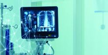 خوارزمية ذكاء اصطناعي لتشخيص احتشاء عضلة القلب