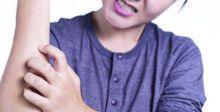 كيفيَّة استشعار الدماغ بالحكة الجلديَّة المزمنة