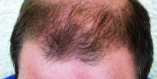 طريقةٌ جديدةٌ لتنشيط الخلايا الجذعيًّة لنمو الشعر