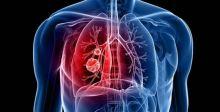 عقاران يحدان من سرطان الرئة