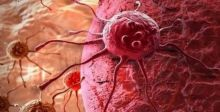طريقة لتقليل فرص الإصابة بالسرطان